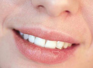 نکات مهم در خصوص تزریق ژل لب