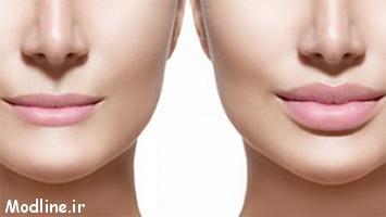 تزریق ژل یا چربی، کدام یک برای لب بهتر است