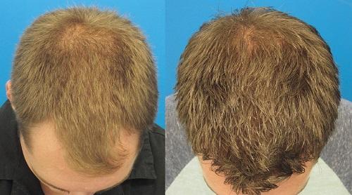 تاثیر ماینوکسیدیل در درمان ریزش مو